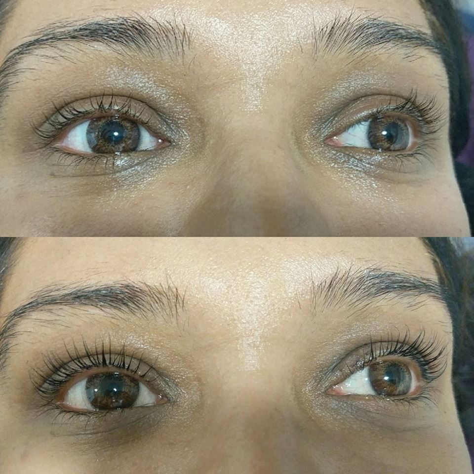 Lash Treatments Which One Is Right For Me Skin Laser Hair