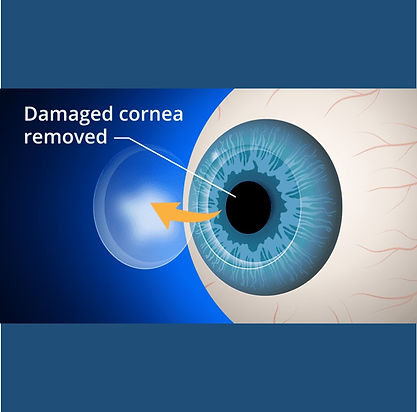 lions medical-eye and laser-centre- opti