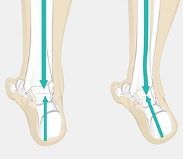 pronation done.png