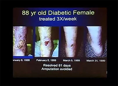 88 year old diabetic female shows remarkable improvement on her leg to avoid amputation
