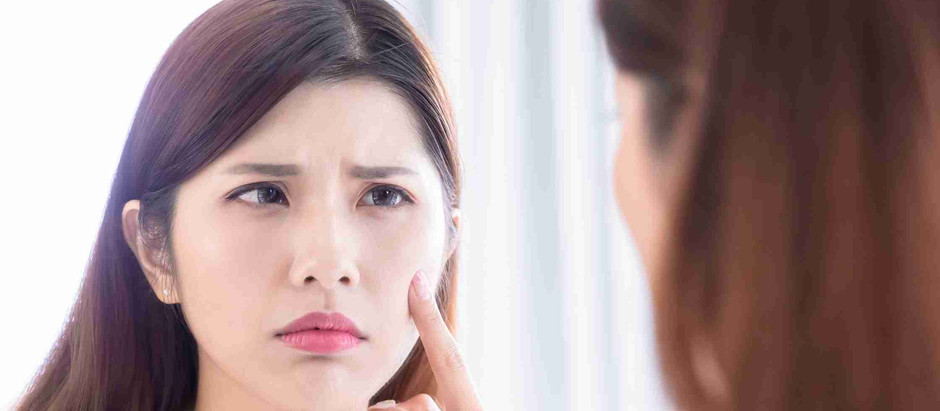 What is blackhead ? How to remove one? Say goodbye to blackhead forever.