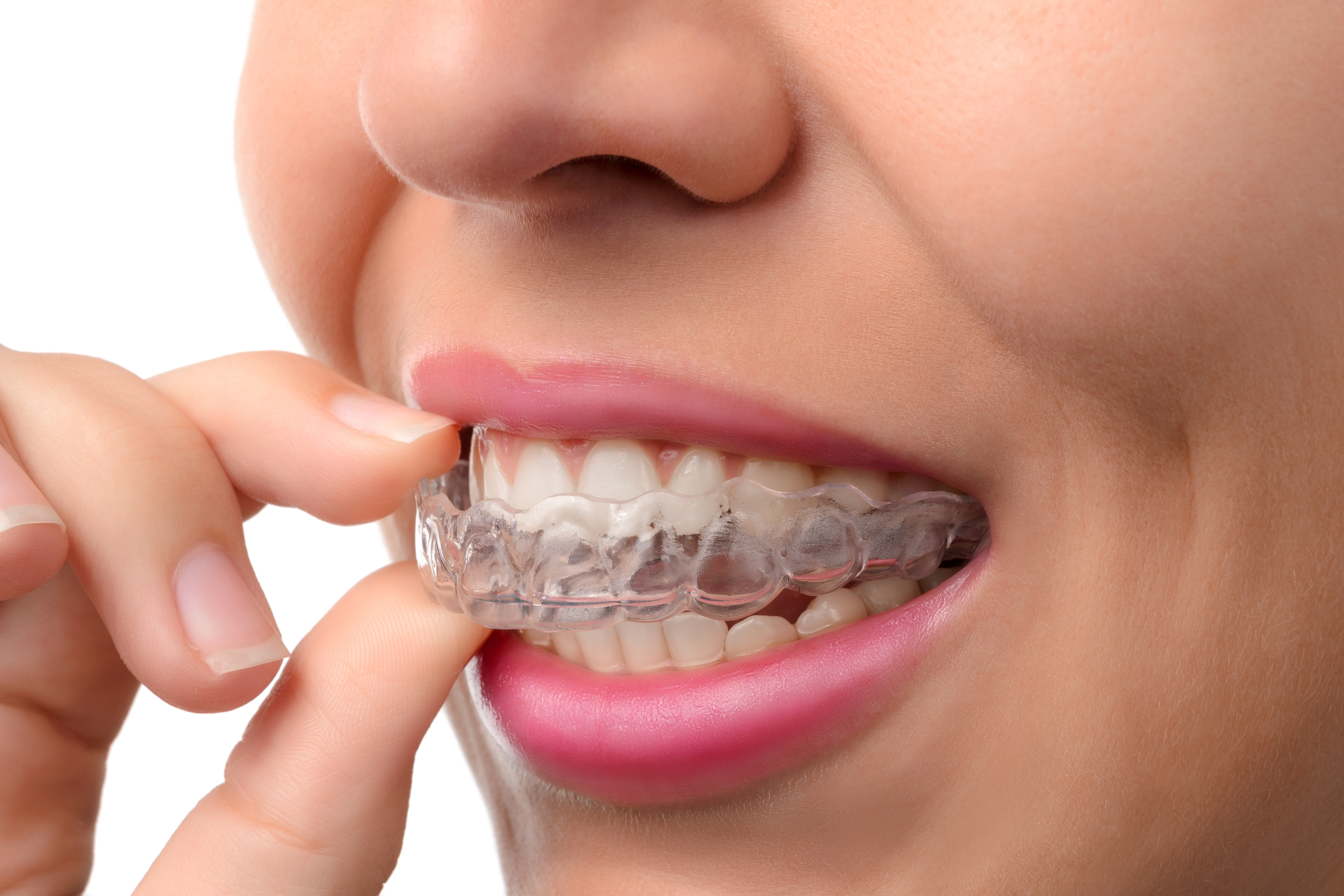 Woman wearing orthodontic silicone train