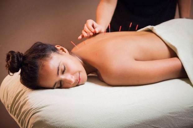 Acupunctura no restabelecimento da saúde e do bem estar