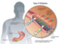 type 2 diabetes treatment singapore, diabetes symptoms singapore, glucose singapore, insulin singapore