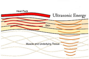 blood circulation problems singapore, circulation treatment singapore, improve leg circulation singapore, improve hand circulation singapore, improves blood circulation singapore