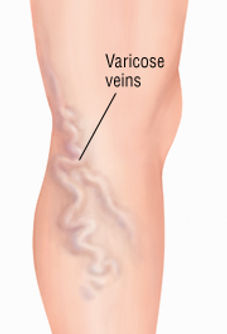 varicose veins singapore, treatment of varicose veins singapore, legs varicose singapore, painful varicose singapore, treatment of spider veins singapore