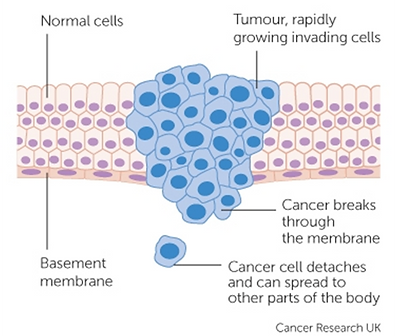 cancer treatment singapore, heat therapy singapore, hyperthermia treatment singapore, oxygen therapy singapore, side effects of cancer singapore