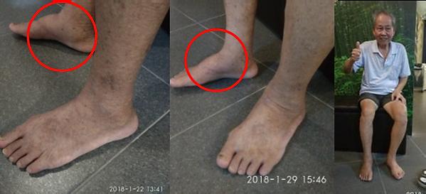 best foot spa massage bukit timah, best foot reflexology spa massagebukit timah, best foot massage spa bukit timah