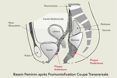 Descente d'organes Dr Olivier Marpeau.pn