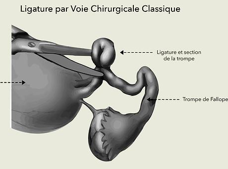 gyneco ligature des trompes Dr Olivier M