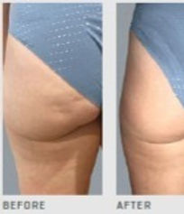 Cellulite Before and After_edited_edited_edited.jpg