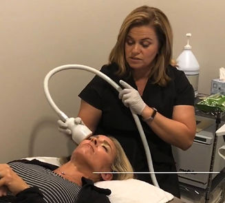 Amy doing Cryo Facial to reduce lines .j