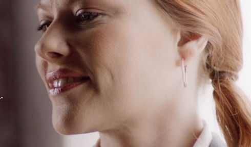 Kybella Double Chin model.JPG
