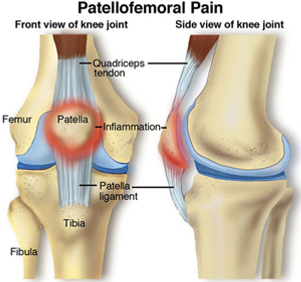 "don't pull my leg"" pain: chondromalacia patella 