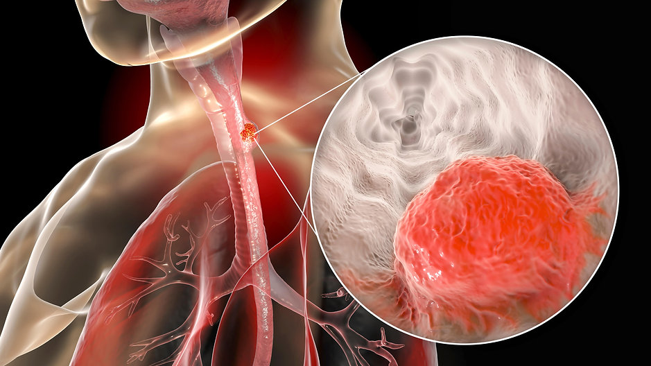 Esophageal_Cancer_Hyperthermia_Centre_Ha