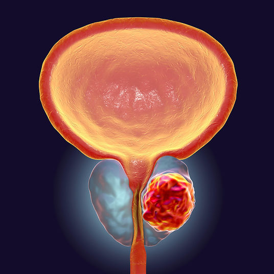 Prostate_Cancer_Hyperthermia_Centre_Hann