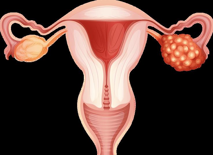 Ovarian_Cancer_Hyperthermia_Centre_Hanno