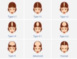 Female Pattern Baldness, Hair Loss Chart