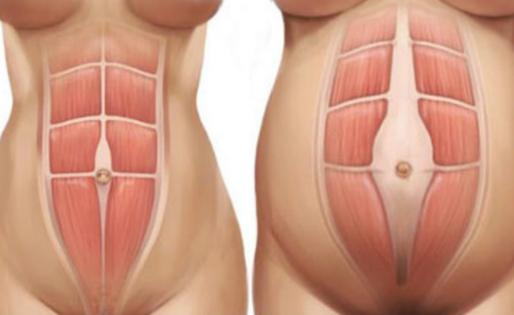 Diastasis Recti: Diagnosis & Healing