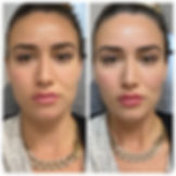 dermal filler before and after grace medical aesthetics