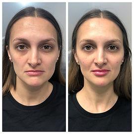 dermal filler before and after grace medical aesthetics