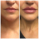 lip augmentation restylane refyne grace medical aesthetics