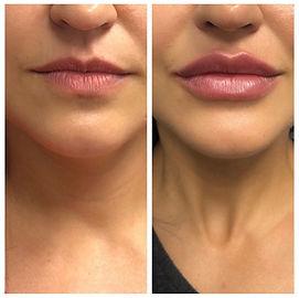 lip augmentation restylane refyne grace medical aesthetics