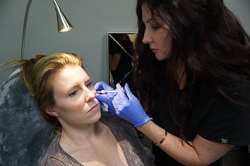 charis wipfler grace medical aesthetics injector cheek augmentation