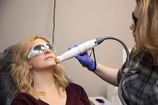 robyn calitri grace medical aesthetics 1540 fractionated laser facial