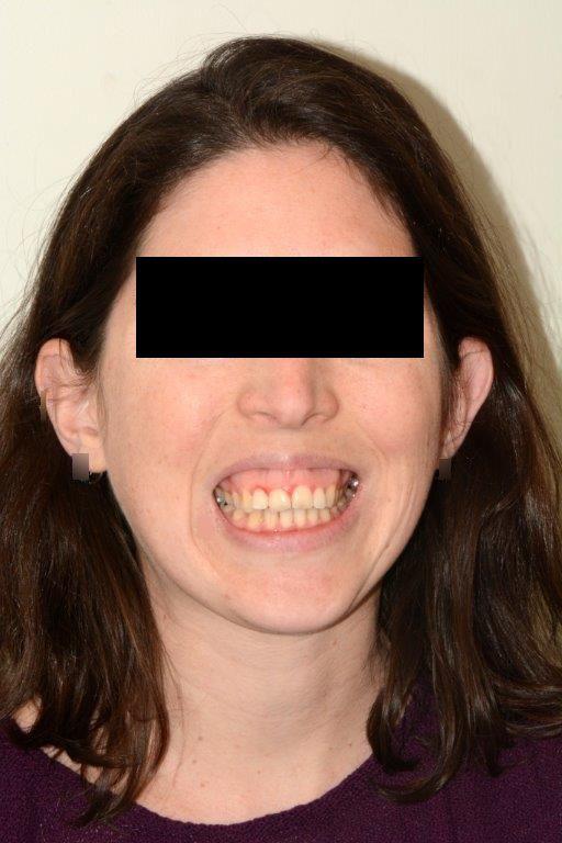 אסימטריה של הפנים לסת עליונה בולטת וארוכה-פנים נוטות לצד שמאל