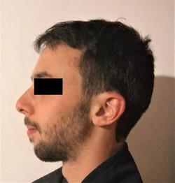 פרופיל לאחר הניתוח