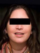 פנים סימטריות וסגר מלא של הלסתות