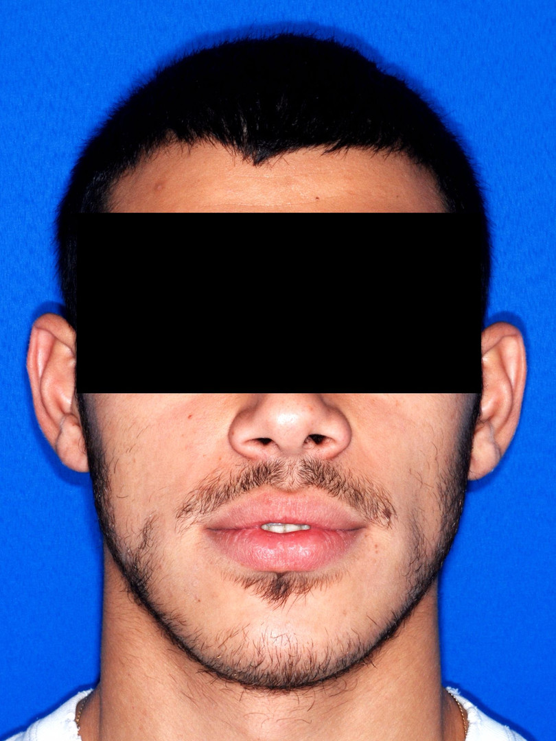 פנים סימטריות לאחר הניתוח