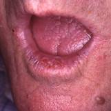 בן 70- סרטן בשפה תחתונה מפוזר.jpg