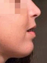 פרופיל סימטרי של הלסתות, אף סולד ומנשך מלא-לאחר הניתוח