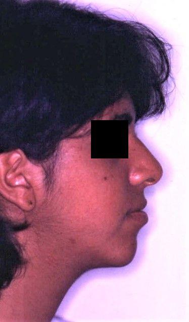 לאחר ניתוח-סגר מלא