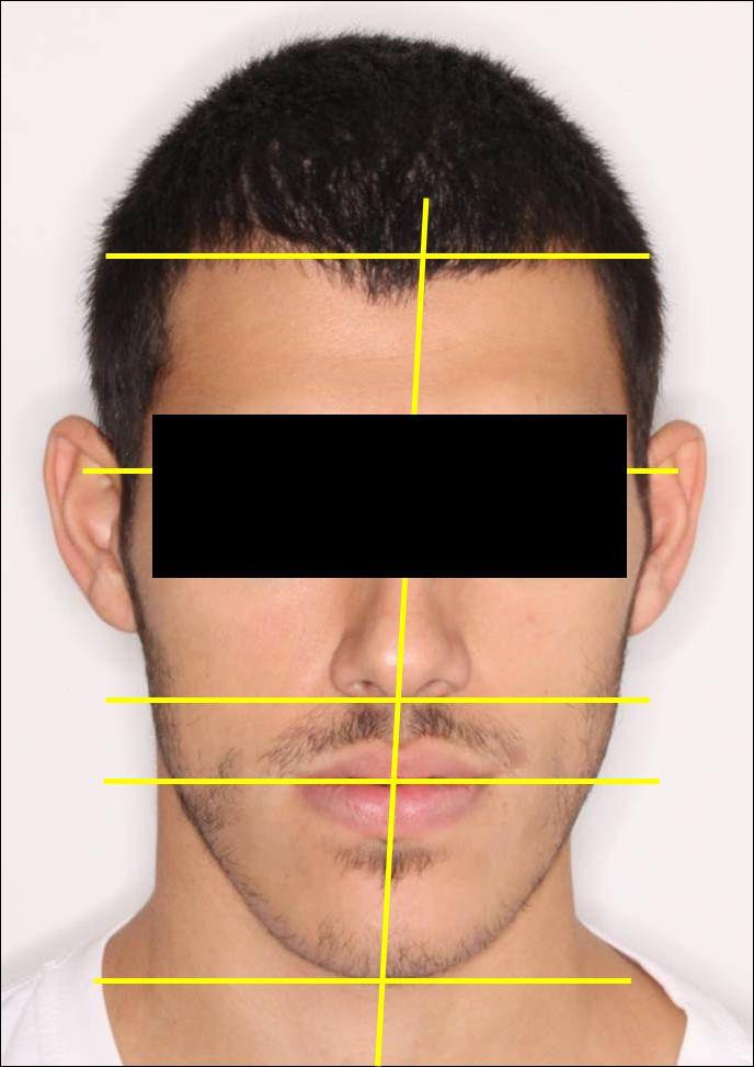 סטיה של הפנים ימינה לפני הניתוח עם מנשך פתוח ולסת תחתונה בולטת