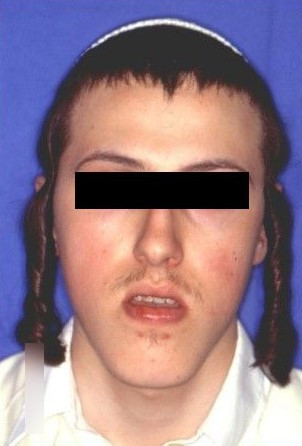 פנים ארוכות, לסת תחתונה בולטת ועליונה שקועה לפני הניתוח