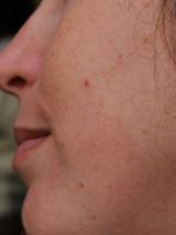 סגר מלא של הלסתות ופרופיל סימטרי לאחר הניתוח