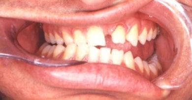 מנשך מלא פתוח משמאל-לפני הניתוח