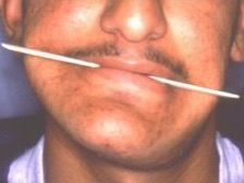 אסימטריה של הפנים-לפני הניתוח