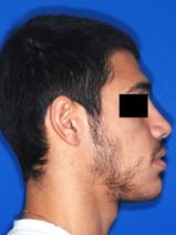 לאחר הניתוח-סגר מלא ופרופיל סימטרי שתרם גם לאף סולד