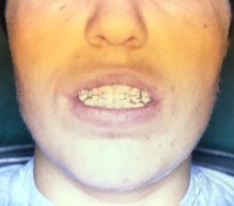 לפני ניתוח-אי יכולת לסגור את הפה