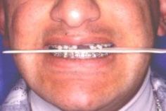 אחרי הניתוח-סגר מלא וסימטרי