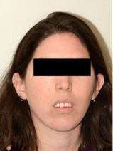 לפני ניתוח דו לסתי-אסימטריה בפנים ואי יכולת לסגור את הפה