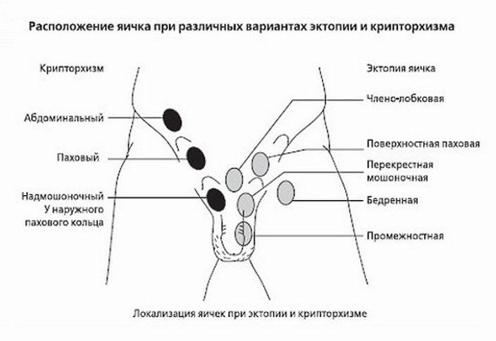 klassifikaciya-kriptorhizma-1.jpg