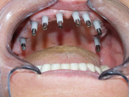 Dental Implants: Replacement teeth that look and feel like your own