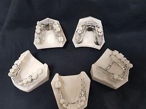 service prothese dentaire pour les denti
