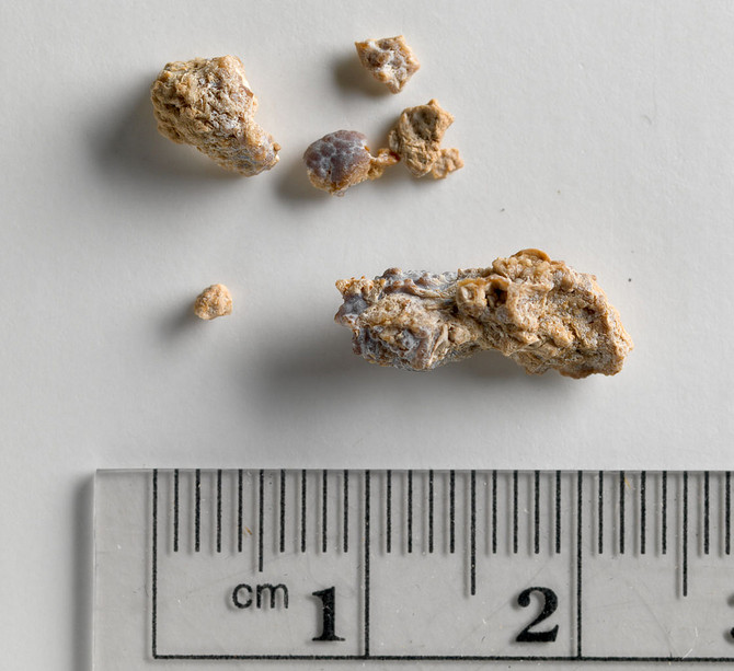 Kidney Stones and Nutrition