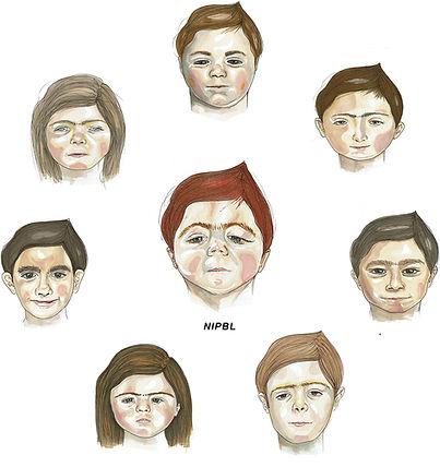 CdLS faces
